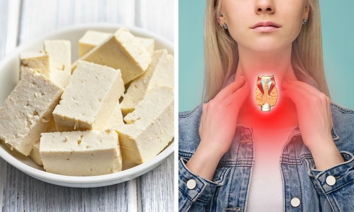 branza tofu din soia, gat femeie tiroida
