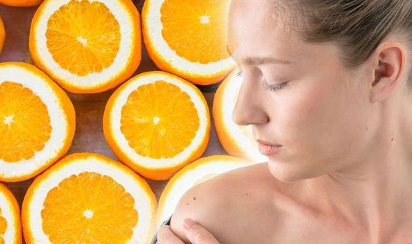 femeie cu piele uscata si semne pe piele din cauza unui deficit de vitamina c
