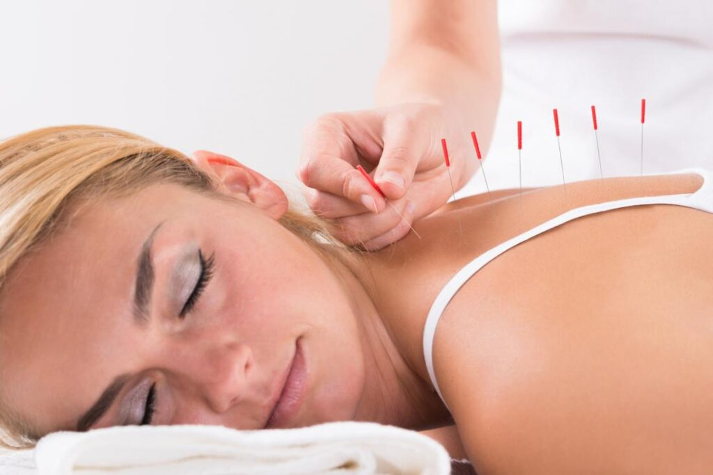 fratament fibromialgia acupunctura femeie cu ochii inschisi intinsa pe pat