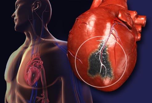 ilustratie inima care a suferit un infarct miocardic
