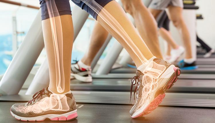 picioare femeie pe banda de alergare prezentare grafica sistem osos