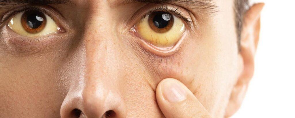 ochi ingalbeniti simptom insuficienta hepatica